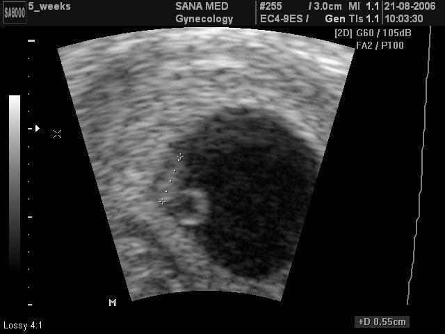 Узи беременность 2 3 недели