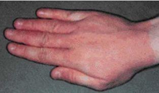 сыпь у ребенка на руках от стирального порошка: