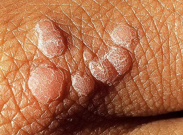 какие скрытые инфекции у мужчин бывают