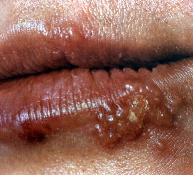 как избавиться от сильного запаха изо рта