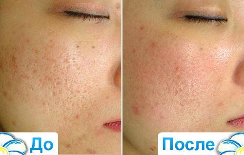 Лазерный пилинг лица -  фото до и после