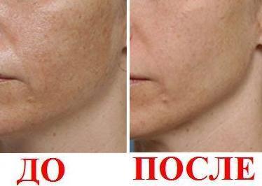 Лицо после фруктового пилинга - фото до и после