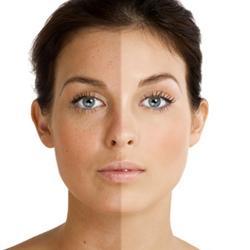 Как восстанавливается кожа после пилинга