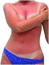 Что делать, если ты сгорела на солнце? 11 советов по борьбе с 42