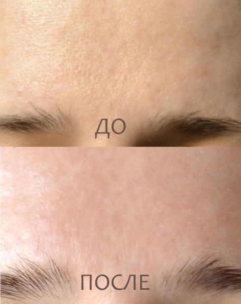 Крем удаление пигментных пятен на лице