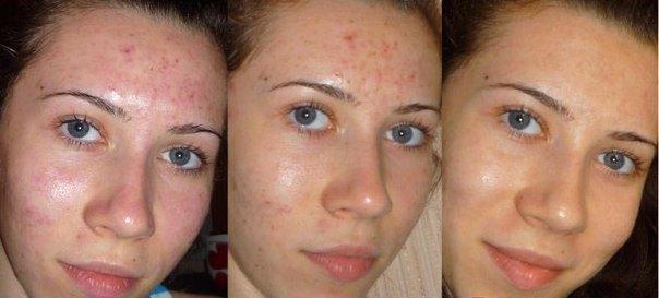 Энзимный пилинг лица - отзывы