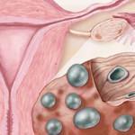 Настоящие причины поликистоза яичников