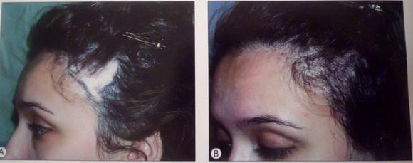 Эффективное масло для сухих кончиков волос