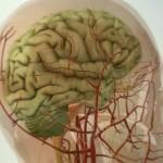 Симптомы настоящей мигрени