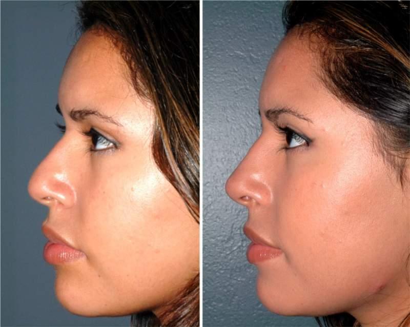 Результат ринопластики фото до и после