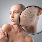 Причины сухой кожи лица и тела