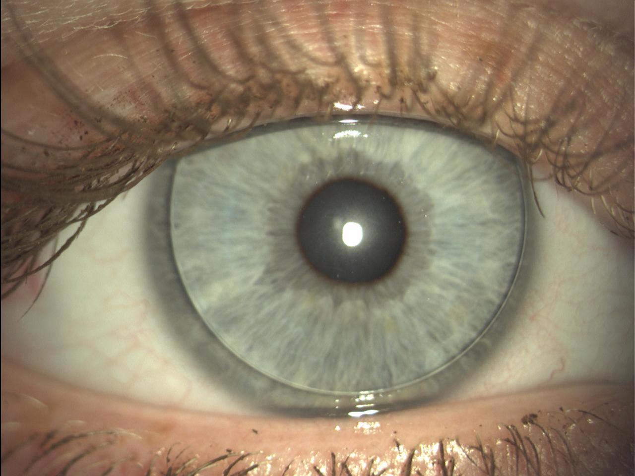 Глаз как орган зрения доклад