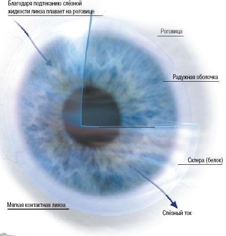 Сажают ли линзы зрение 69