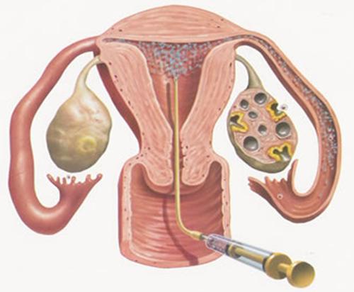 ввод спермы в полость матки-ыщ1