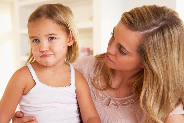 Ветрянка у детей - первые симптомы
