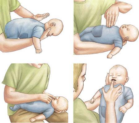 Ребенок подавился, задыхается – первая помощь грудничку