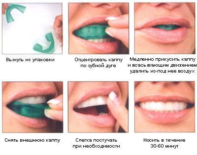 Как отбелить зубы в домашних условиях за один день содой