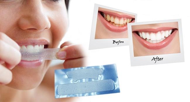 Отбеливание зубов в домашних условиях