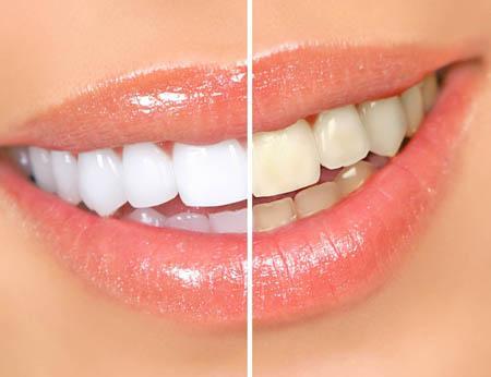 Гель для зубов отбеливающий отзывы цена