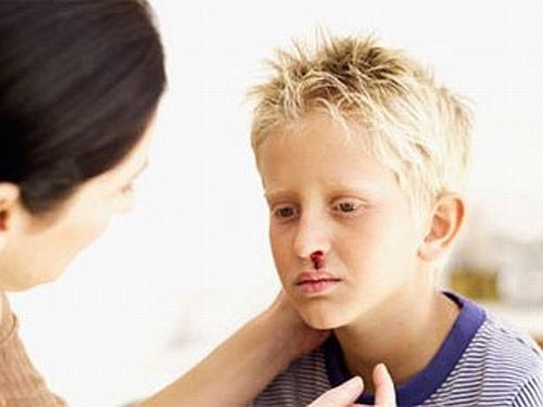 Почему у ребенка идет носом кровь, и как остановить носовое кровотечение
