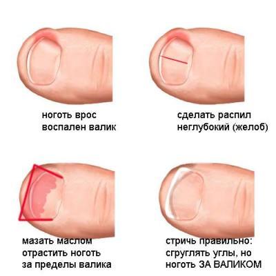 Грибок разрушает ногтевое ложе