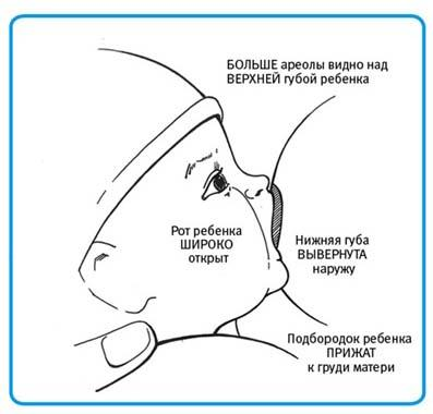 Отзывы о санатории для лечения межпозвоночной грыжи
