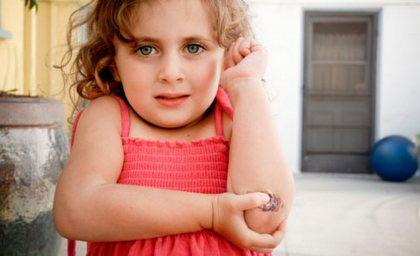 ссадины и царапины у ребенка