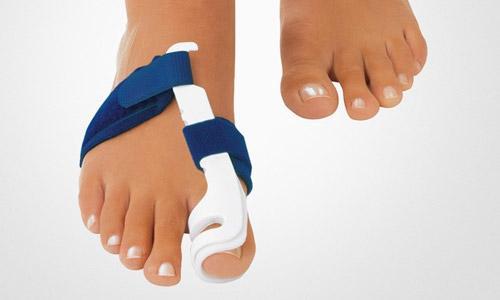Косточка на ноге. Ортопедическая шина