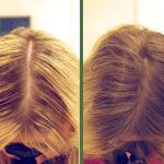 Какие результаты дает мезотерапия для волос?