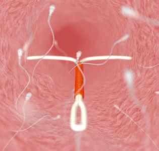 виды внутриматочной спирали: