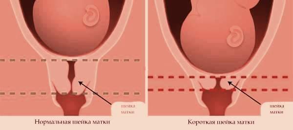 Длина шейки матки при беременности – таблица нормы по неделям, прогноз