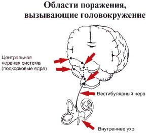 Голова кружится при заболеваниях головного мозга и органов головы