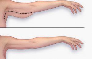 Лучшие упражнения для рук - как избавиться от дряблости рук?