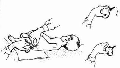 Как поставить ребенку клизму