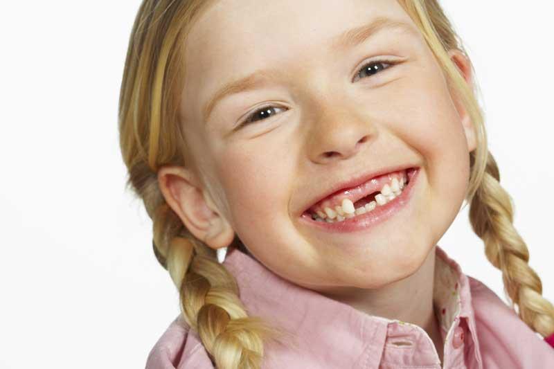 Молочный зуб фото для детей