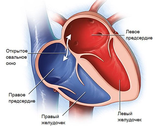 Открытое овальное окно в сердце новорожденного ребенка