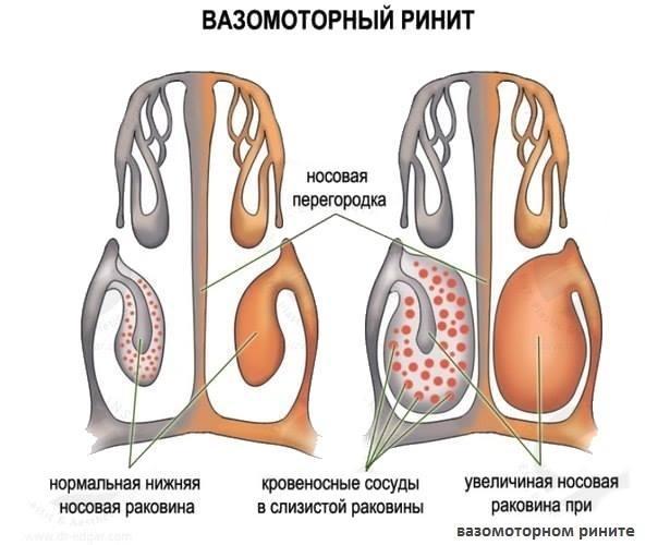 Симптомы ринита беременной - отличие от насморка при простуде