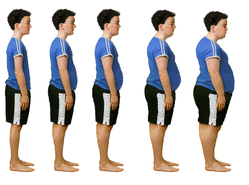 Чем опасно ожирение у детей