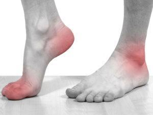 Симптомы подагры у женщин и мужчин