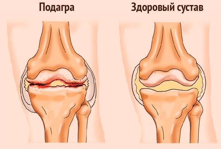 Причины и симптомы подагры