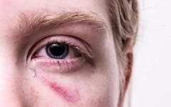 Куда обращаться, если муж бьет жену – правовая защита от домашнего насилия