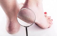 Потрескавшиеся пятки: 5 простых средств для гладкой и красивой кожи