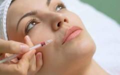 Процедура карбокситерапии в косметологии – результат на фото до и после