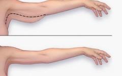Избавляемся от дряблости рук за 20 минут в день — 12 лучших упражнений для рук
