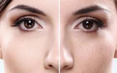 Расширенные поры на лице: уход и макияж