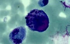 Цитомегаловирусная инфекция, её опасность для мужчин и женщин