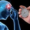 Симптомы и признаки инсульта – первая помощь при остром нарушении мозгового кровообращения