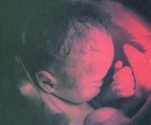 Беременность 34 неделя – развитие плода и ощущения матери