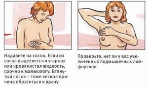 Почему может болеть грудь у женщины? Когда боли в груди - норма