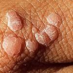 Скрытые инфекции у мужчин и женщин